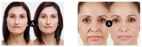 Auvela avant/après efficacité du soin anti-âge