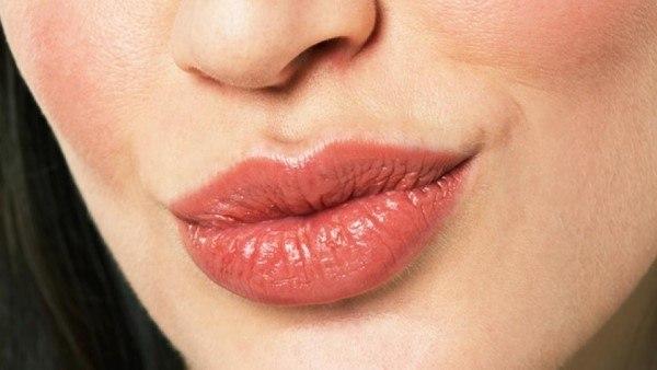 Rides d'expressions autour des lèvres